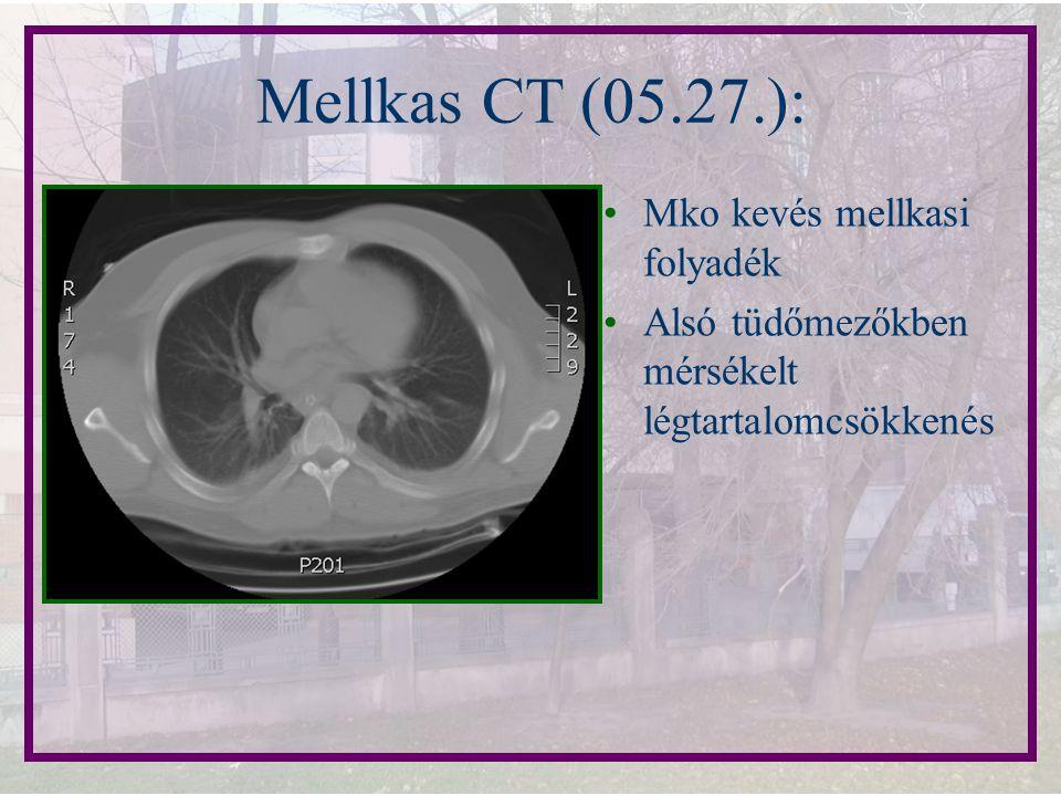 Mellkas CT (05.27.): Mko kevés mellkasi folyadék Alsó tüdőmezőkben mérsékelt légtartalomcsökkenés
