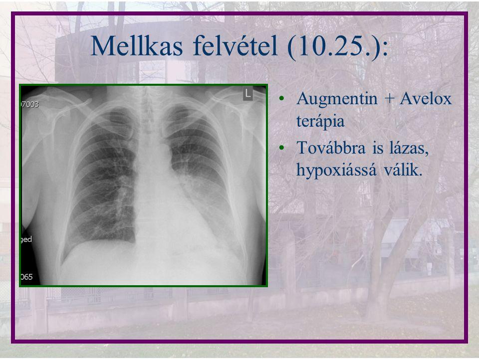 Mellkas felvétel (10.25.): Augmentin + Avelox terápia Továbbra is lázas, hypoxiássá válik.
