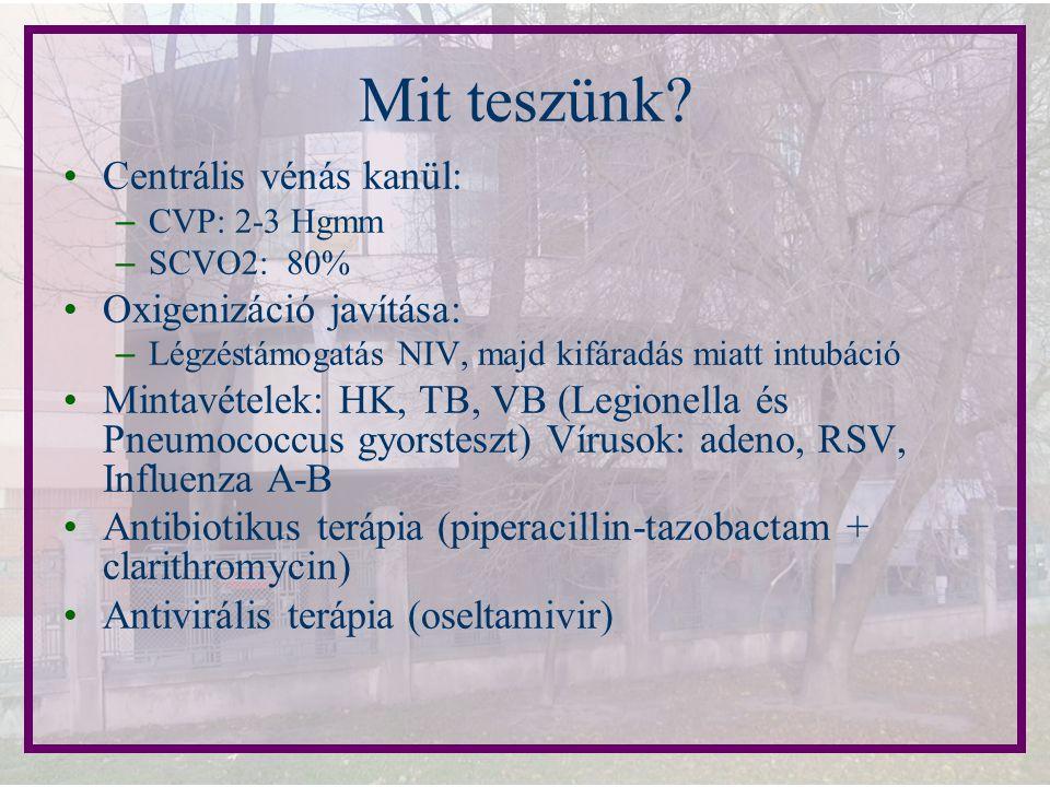 Centrális vénás kanül: – CVP: 2-3 Hgmm – SCVO2: 80% Oxigenizáció javítása: – Légzéstámogatás NIV, majd kifáradás miatt intubáció Mintavételek: HK, TB,