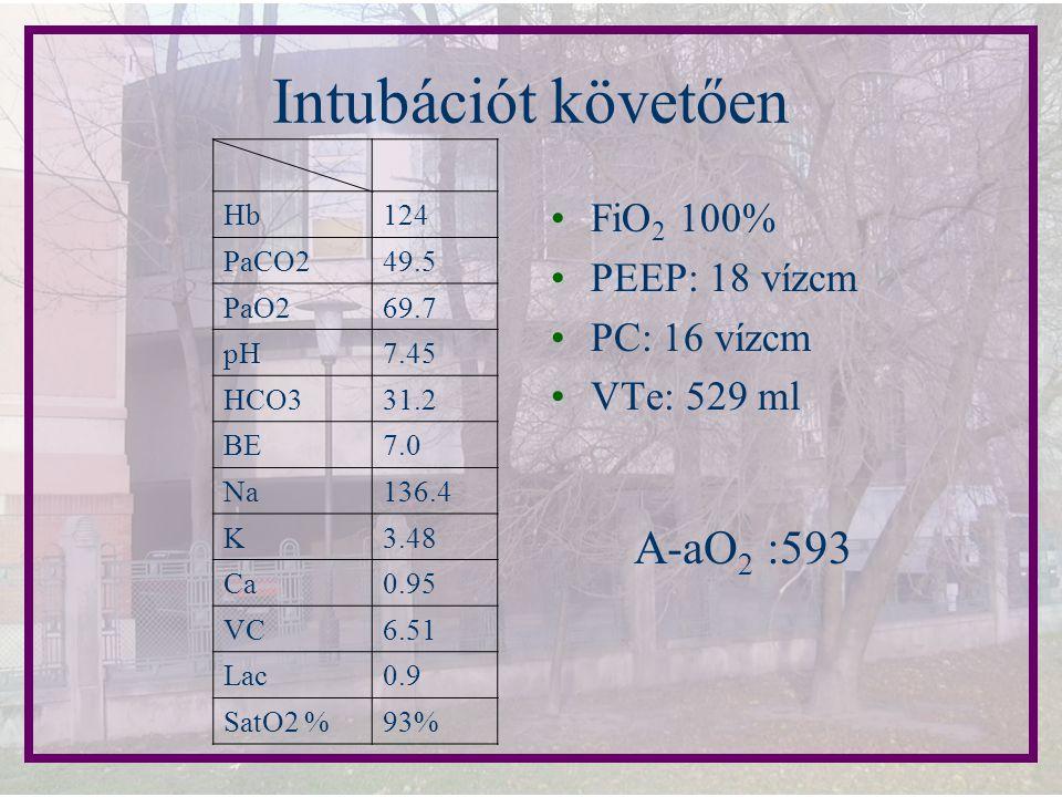 Intubációt követően FiO 2 100% PEEP: 18 vízcm PC: 16 vízcm VTe: 529 ml Hb124 PaCO249.5 PaO269.7 pH7.45 HCO331.2 BE7.0 Na136.4 K3.48 Ca0.95 VC6.51 Lac0
