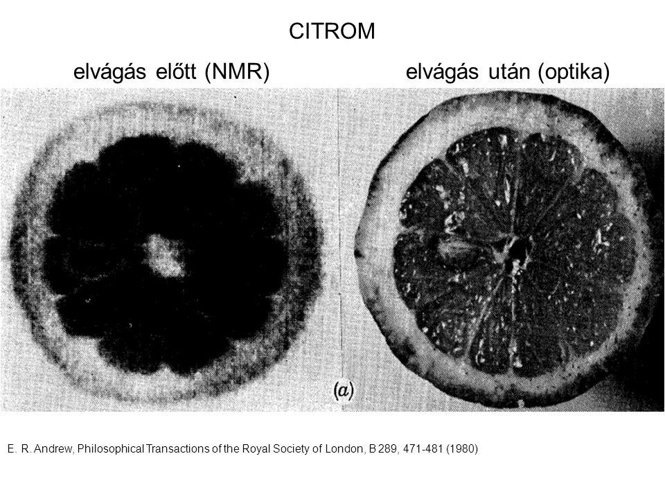 E. R. Andrew, Philosophical Transactions of the Royal Society of London, B 289, 471-481 (1980) CITROM elvágás előtt (NMR)elvágás után (optika)