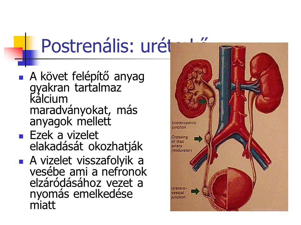 Postrenális: uréterkő A követ felépítő anyag gyakran tartalmaz kálcium maradványokat, más anyagok mellett Ezek a vizelet elakadását okozhatják A vizel