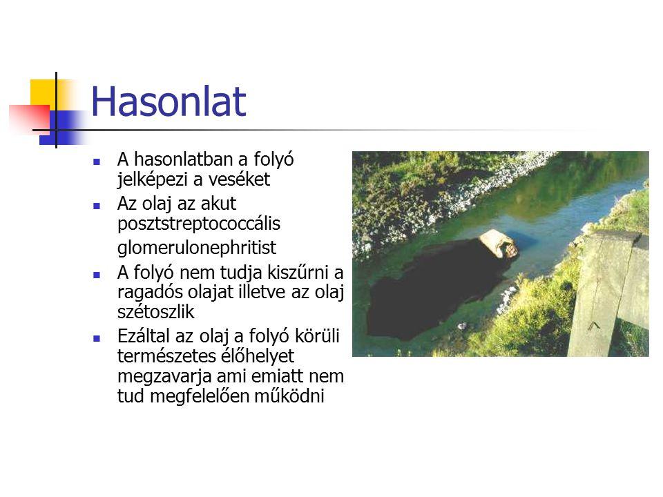 Hasonlat A hasonlatban a folyó jelképezi a veséket Az olaj az akut posztstreptococcális glomerulonephritist A folyó nem tudja kiszűrni a ragadós olaja