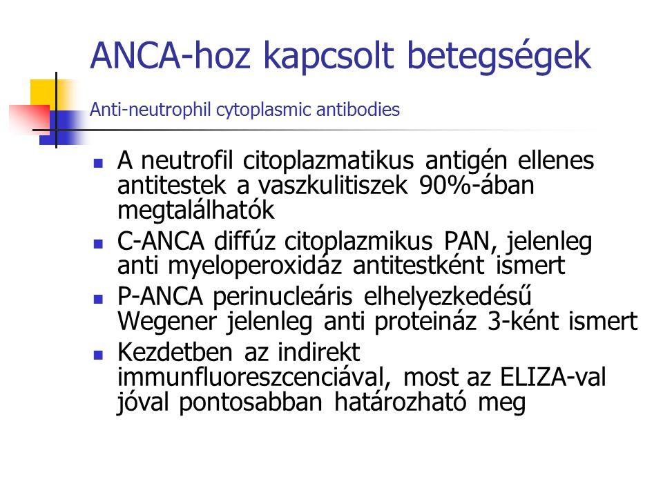 ANCA-hoz kapcsolt betegségek Anti-neutrophil cytoplasmic antibodies A neutrofil citoplazmatikus antigén ellenes antitestek a vaszkulitiszek 90%-ában m