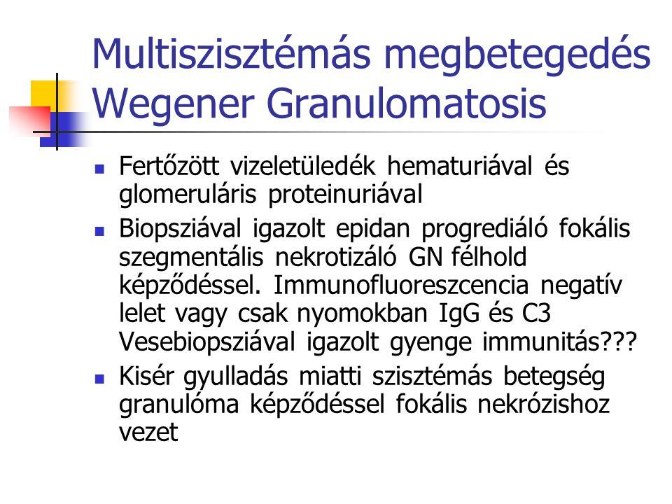 Multiszisztémás megbetegedés Wegener Granulomatosis Fertőzött vizeletüledék hematuriával és glomeruláris proteinuriával Biopsziával igazolt epidan pro