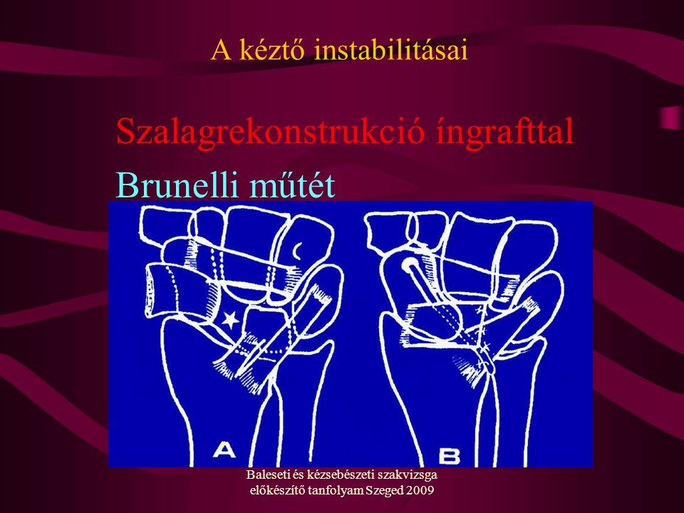 Baleseti és kézsebészeti szakvizsga előkészítő tanfolyam Szeged 2009 A kéztő instabilitásai Szalagrekonstrukció íngrafttal Brunelli műtét