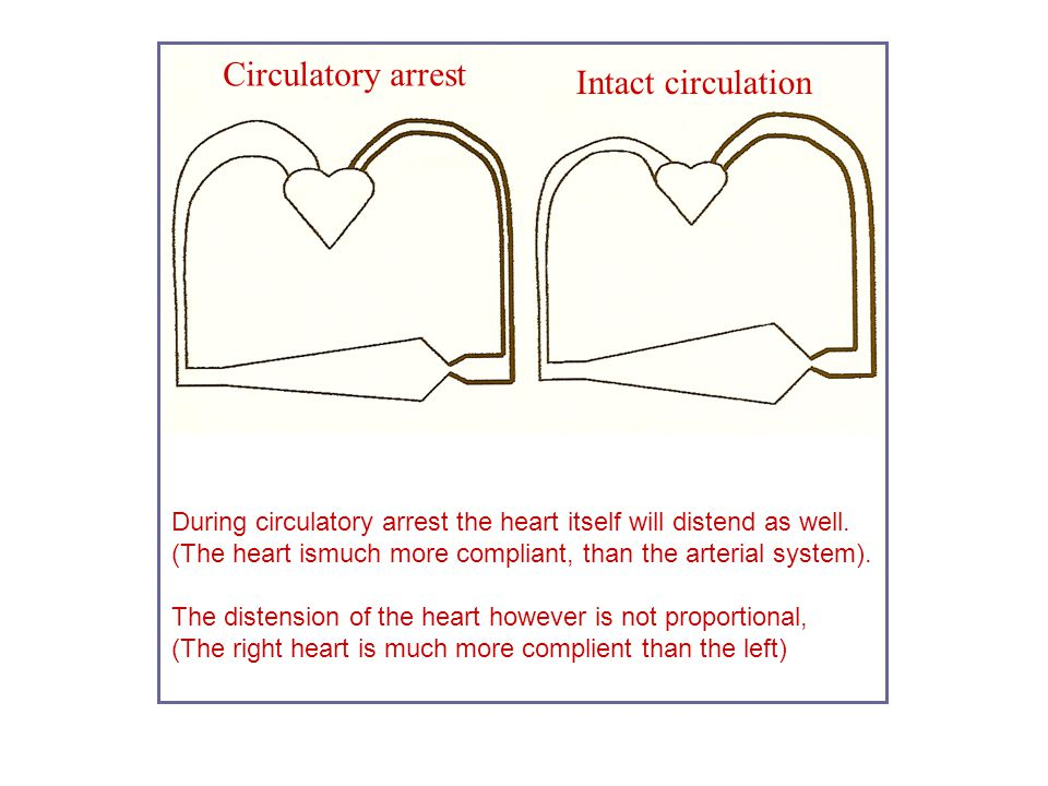 Circulatory arrest During circulatory arrest the heart itself will distend as well. (The heart ismuch more compliant, than the arterial system). The d