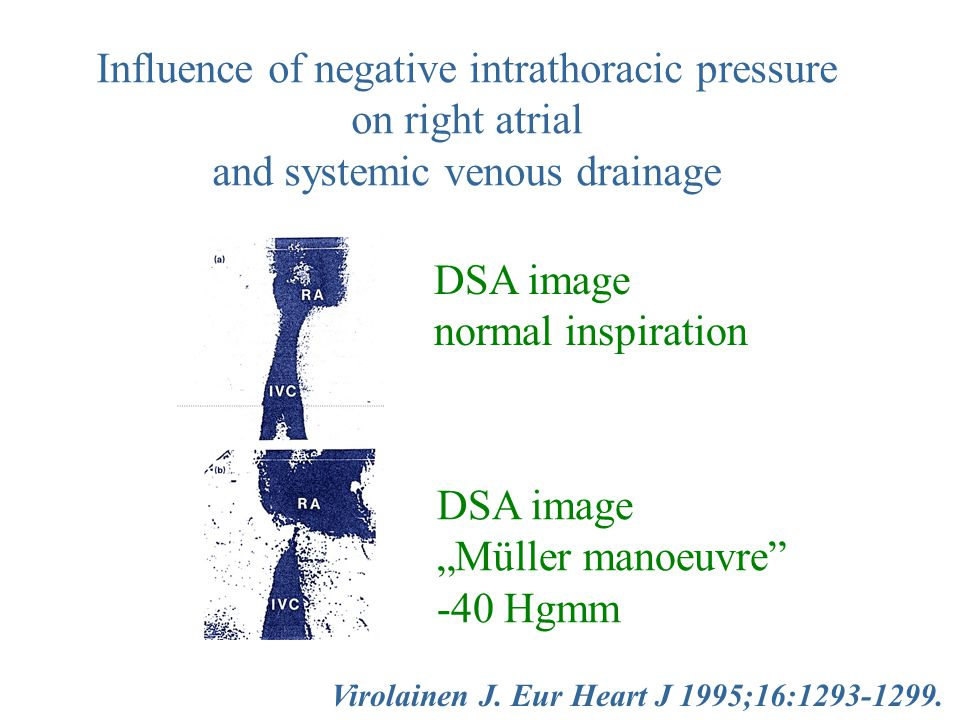 "Virolainen J. Eur Heart J 1995;16:1293-1299. Influence of negative intrathoracic pressure on right atrial and systemic venous drainage DSA image ""Müll"