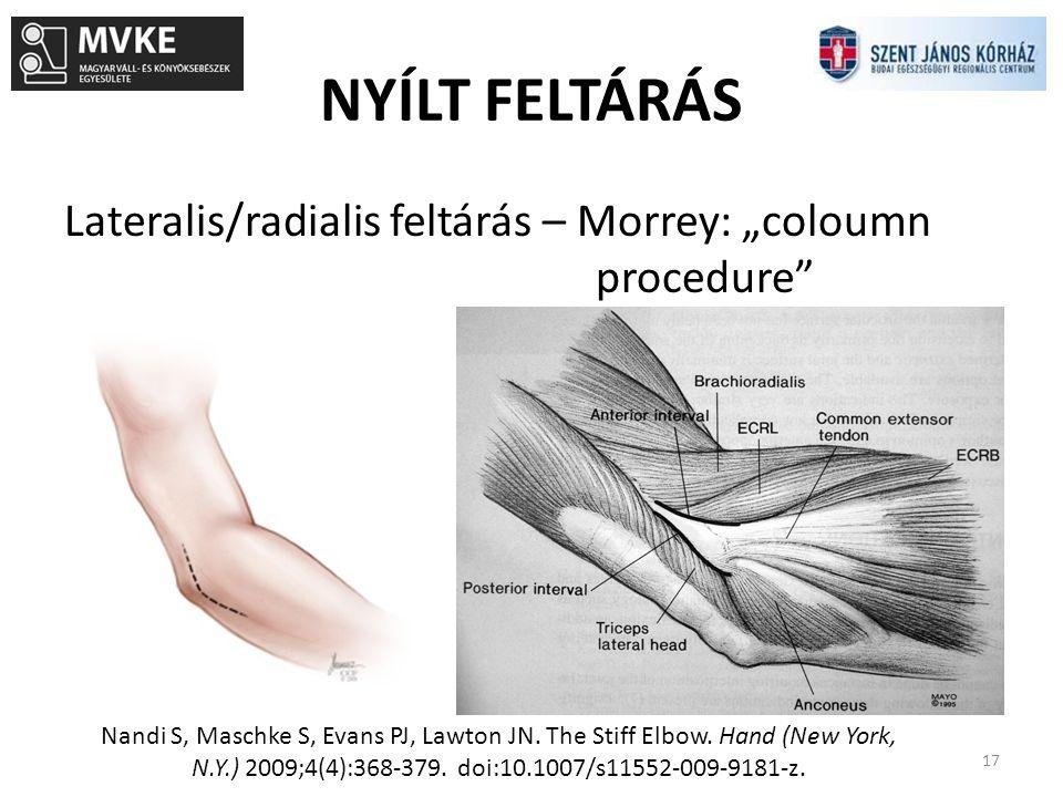 """NYÍLT FELTÁRÁS 17 Lateralis/radialis feltárás – Morrey: """"coloumn procedure"""" Nandi S, Maschke S, Evans PJ, Lawton JN. The Stiff Elbow. Hand (New York,"""