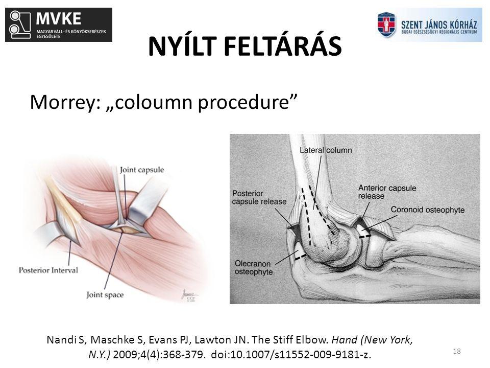 """NYÍLT FELTÁRÁS 18 Morrey: """"coloumn procedure"""" Nandi S, Maschke S, Evans PJ, Lawton JN. The Stiff Elbow. Hand (New York, N.Y.) 2009;4(4):368-379. doi:1"""