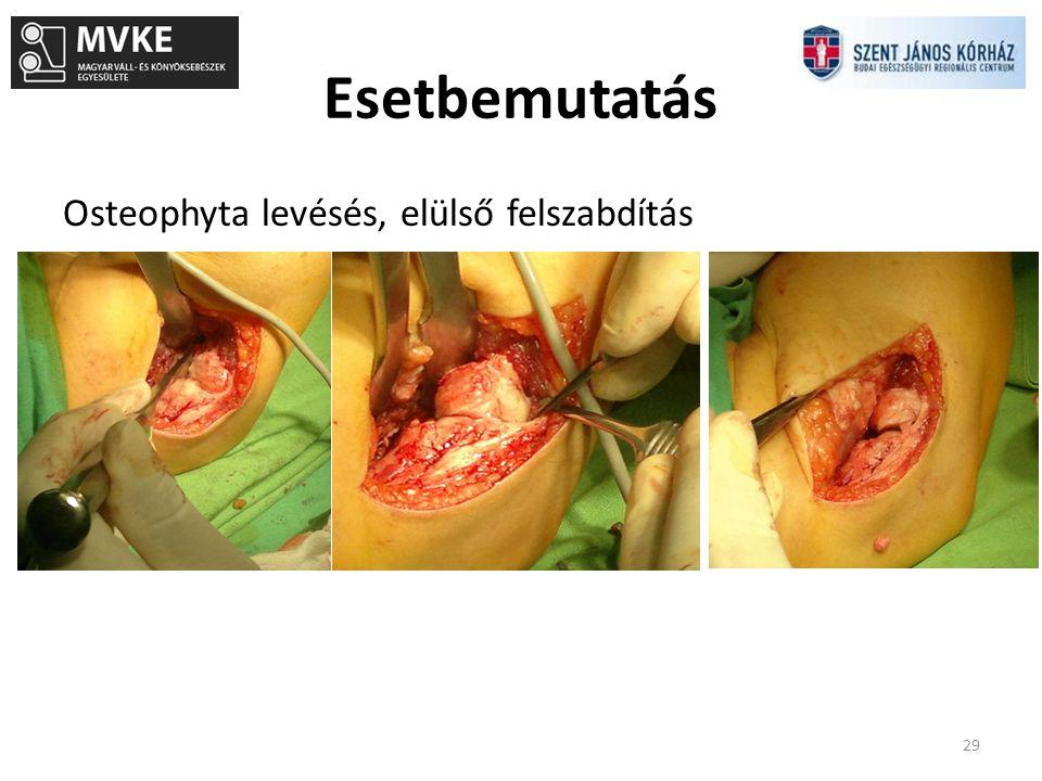 Esetbemutatás 29 Osteophyta levésés, elülső felszabdítás