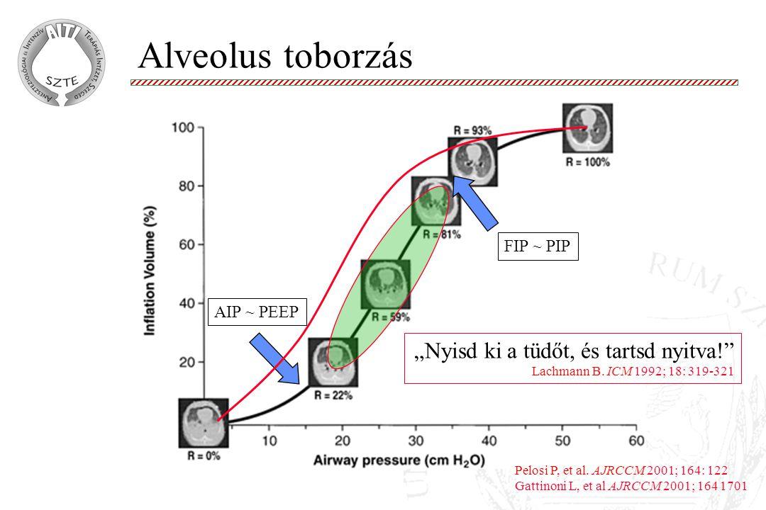 """Alveolus toborzás """"Nyisd ki a tüdőt, és tartsd nyitva!"""" Lachmann B. ICM 1992; 18: 319-321 AIP ~ PEEP FIP ~ PIP Pelosi P, et al. AJRCCM 2001; 164: 122"""