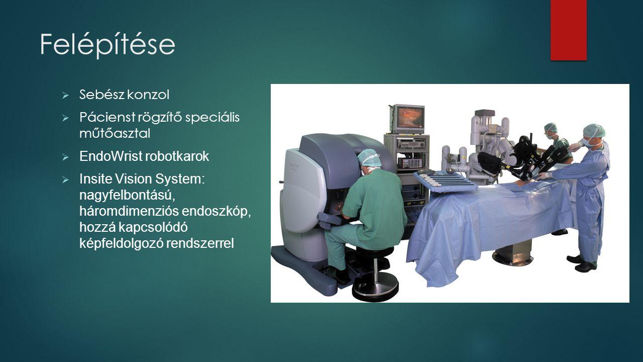 Felépítése  Sebész konzol  Pácienst rögzítő speciális műtőasztal  EndoWrist robotkarok  Insite Vision System: nagyfelbontású, háromdimenziós endos