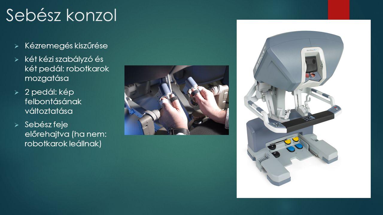 Sebész konzol  Kézremegés kiszűrése  két kézi szabályzó és két pedál: robotkarok mozgatása  2 pedál: kép felbontásának változtatása  Sebész feje e