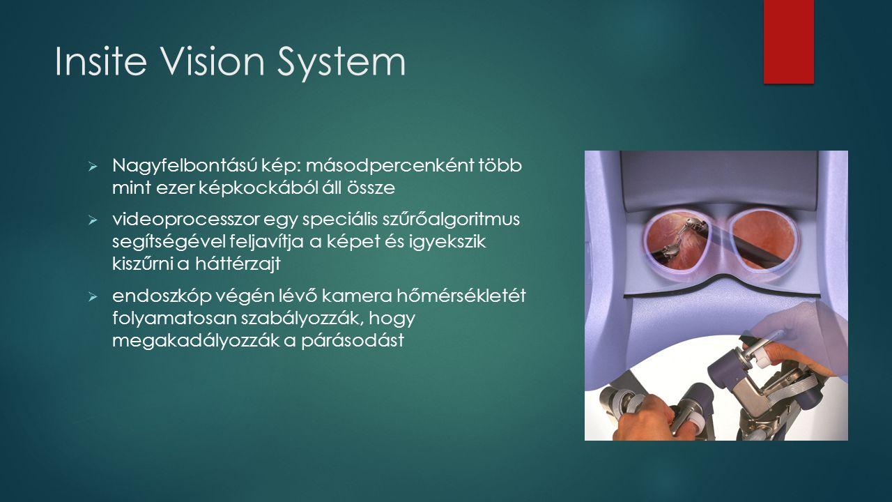 Insite Vision System  Nagyfelbontású kép: másodpercenként több mint ezer képkockából áll össze  videoprocesszor egy speciális szűrőalgoritmus segíts