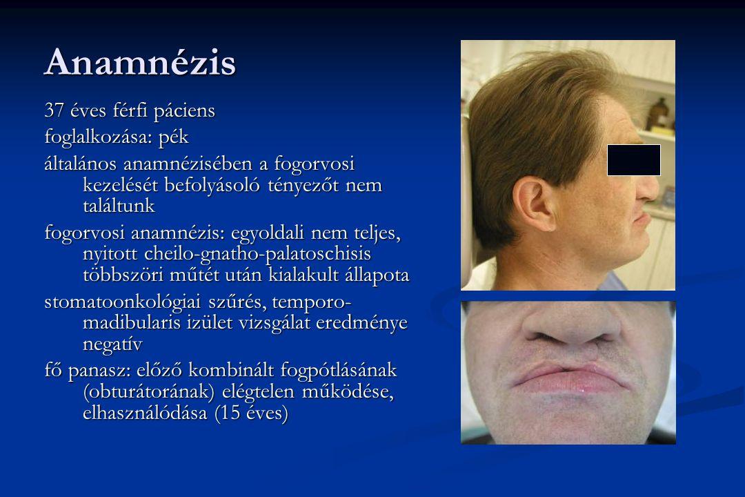 Anamnézis 37 éves férfi páciens foglalkozása: pék általános anamnézisében a fogorvosi kezelését befolyásoló tényezőt nem találtunk fogorvosi anamnézis: egyoldali nem teljes, nyitott cheilo-gnatho-palatoschisis többszöri műtét után kialakult állapota stomatoonkológiai szűrés, temporo- madibularis izület vizsgálat eredménye negatív fő panasz: előző kombinált fogpótlásának (obturátorának) elégtelen működése, elhasználódása (15 éves)