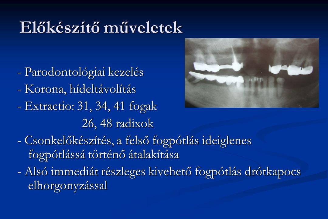 Előkészítő műveletek - Parodontológiai kezelés - Korona, hídeltávolítás - Extractio: 31, 34, 41 fogak 26, 48 radixok 26, 48 radixok - Csonkelőkészítés, a felső fogpótlás ideiglenes fogpótlássá történő átalakítása - Alsó immediát részleges kivehető fogpótlás drótkapocs elhorgonyzással