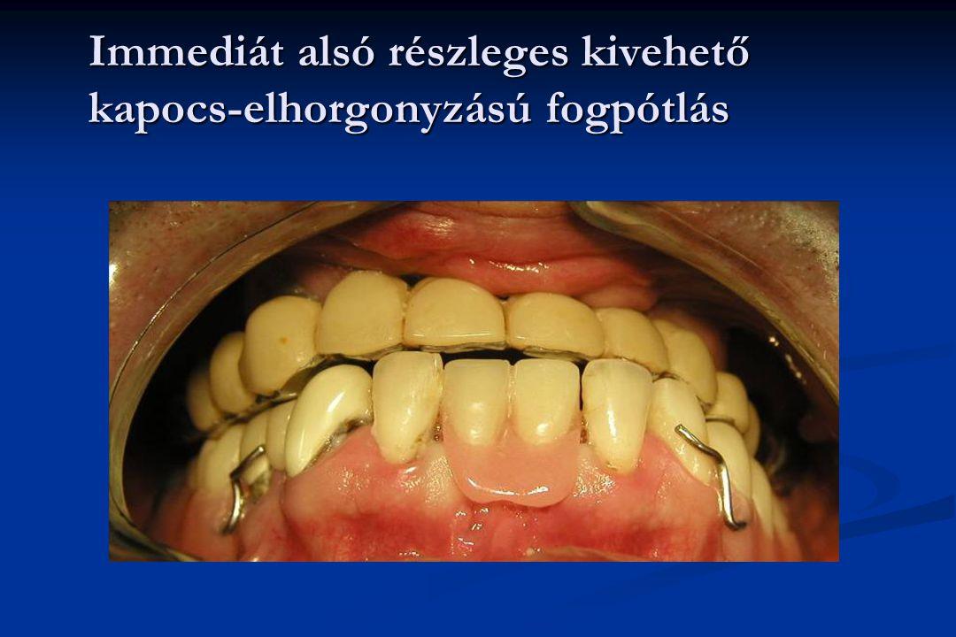 Immediát alsó részleges kivehető kapocs-elhorgonyzású fogpótlás