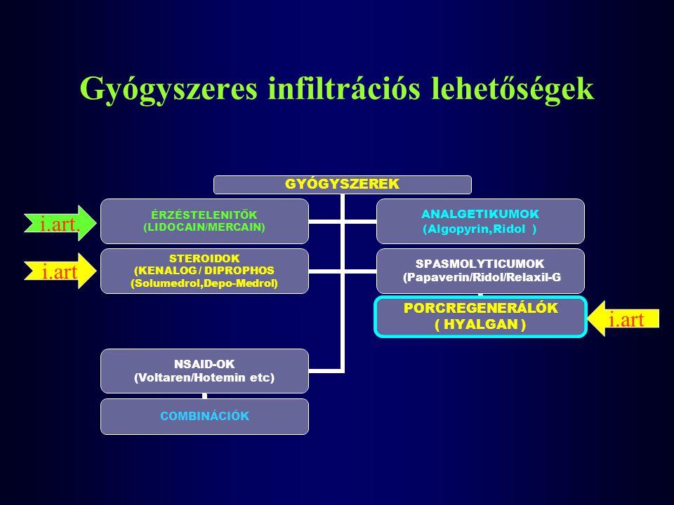 Gyógyszeres infiltrációs lehetőségek GYÓGYSZEREK ÉRZÉSTELENITŐK (LIDOCAIN/MERCAIN) ANALGETIKUMOK (Algopyrin,Ridol ) STEROIDOK (KENALOG / DIPROPHOS (So