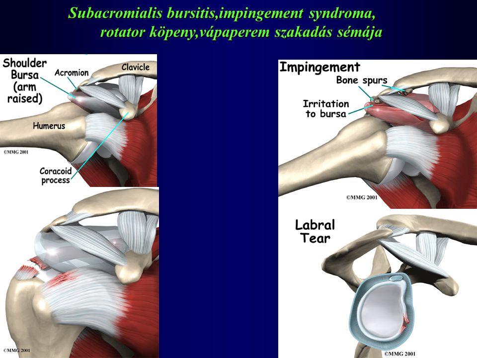 Subacromialis bursitis,impingement syndroma, rotator köpeny,vápaperem szakadás sémája rotator köpeny,vápaperem szakadás sémája
