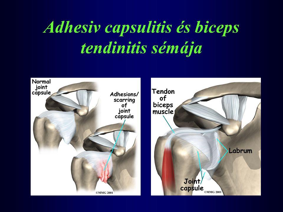 Adhesiv capsulitis és biceps tendinitis sémája