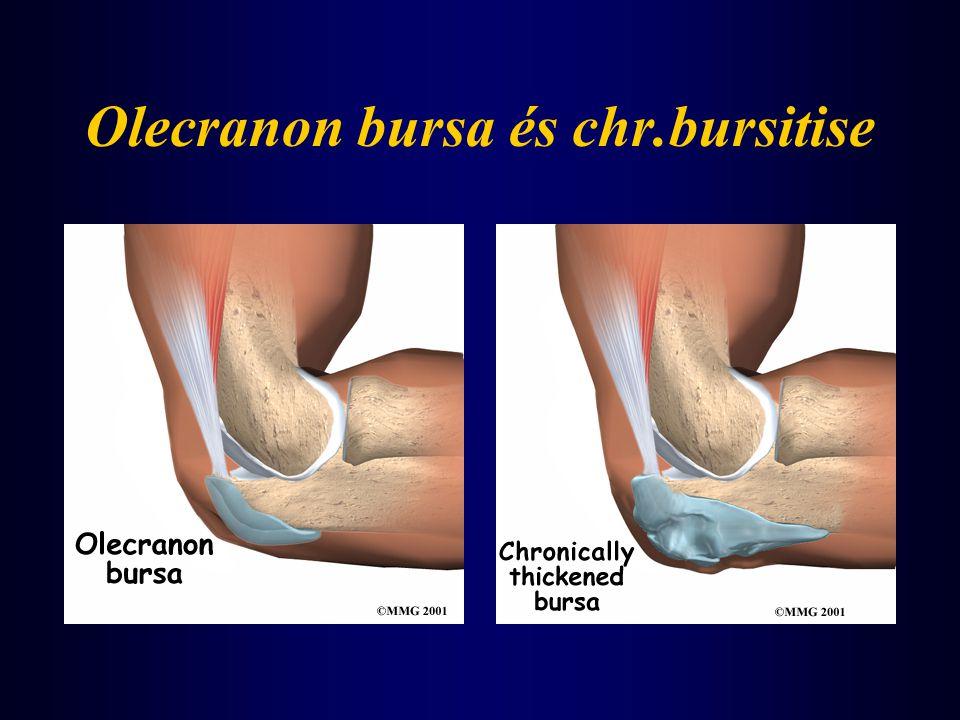 Olecranon bursa és chr.bursitise