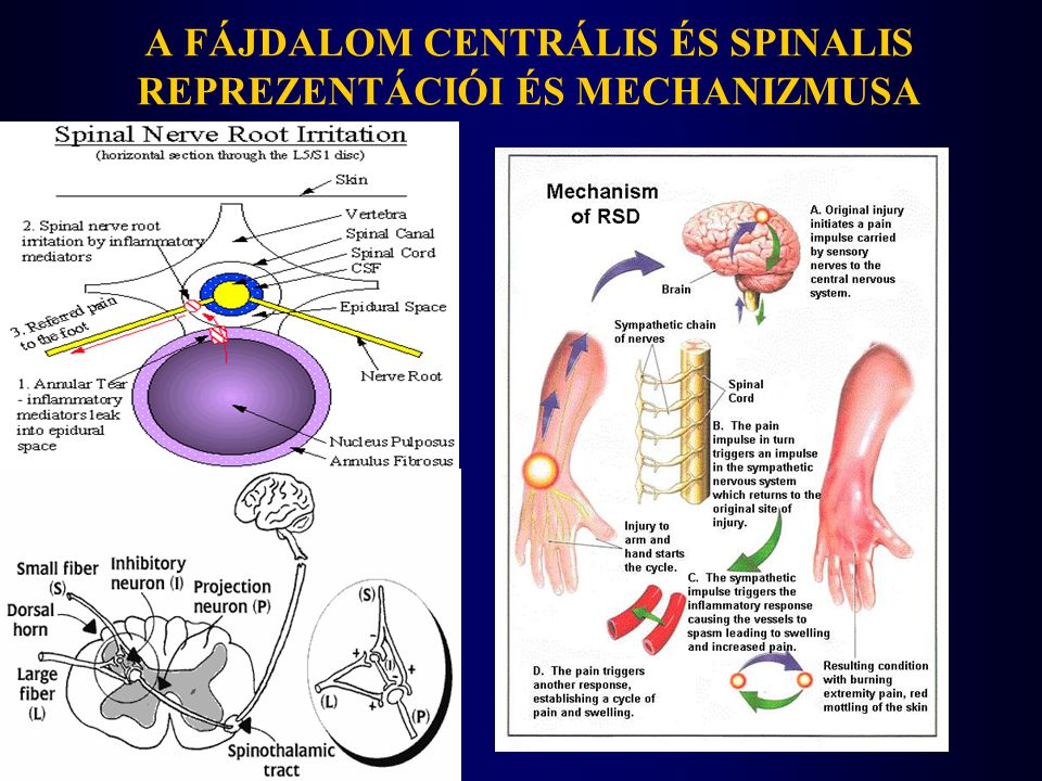 A coraco-acromialis izület és a n.suprascapularis és a sternoclavicularis izület infiltrációjának sémája