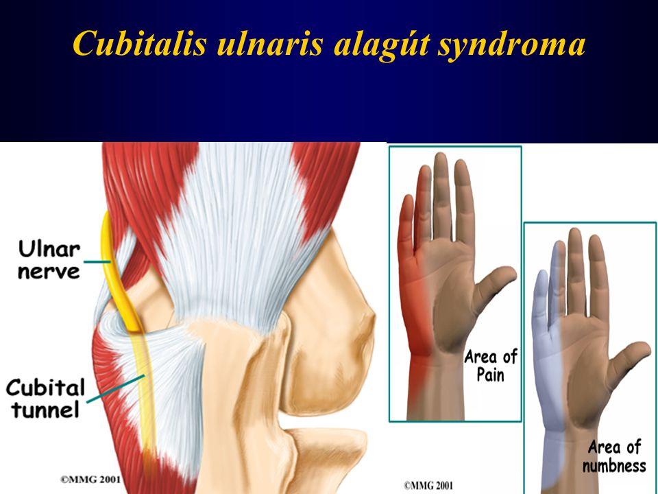 Cubitalis ulnaris alagút syndroma
