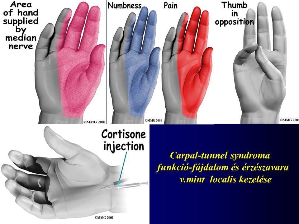 Carpal-tunnel syndroma funkció-fájdalom és érzészavara v.mint localis kezelése v.mint localis kezelése