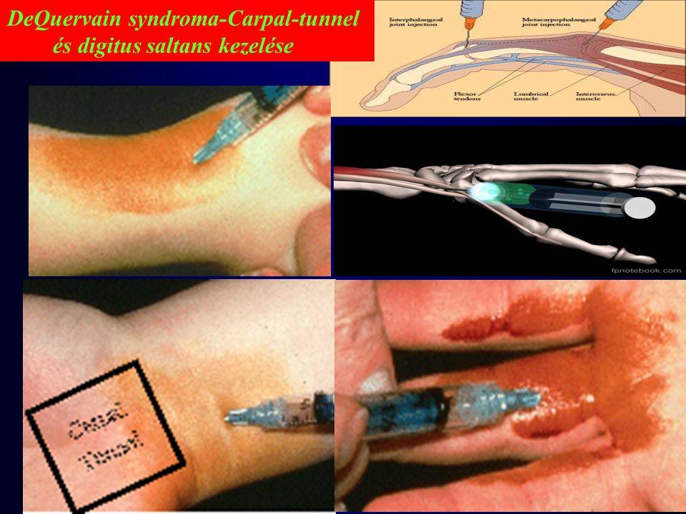 DeQuervain syndroma-Carpal-tunnel és digitus saltans kezelése
