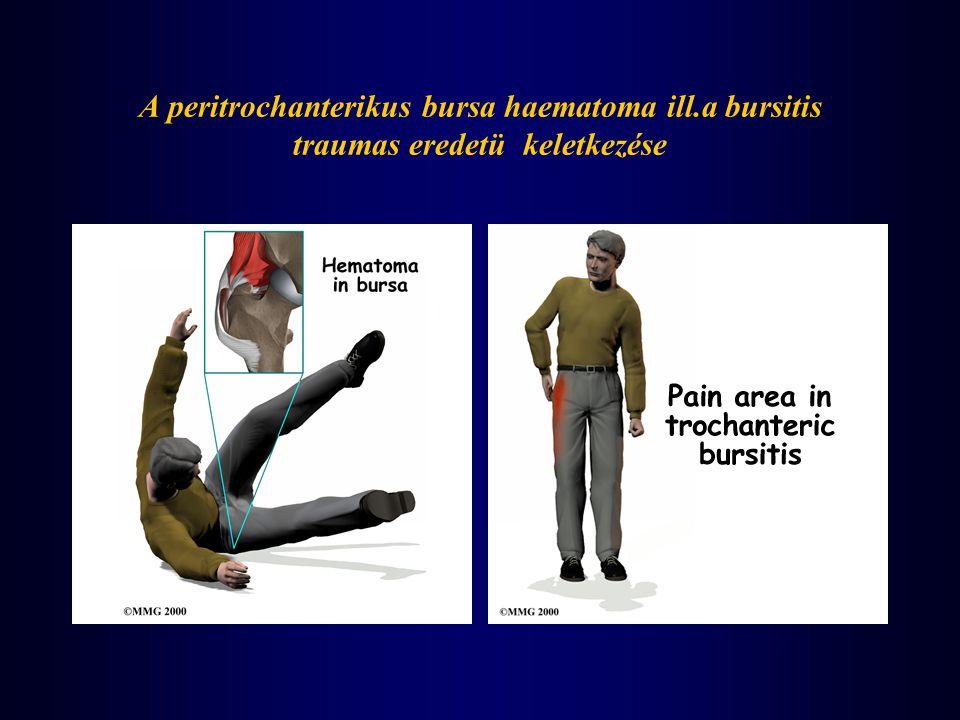 A peritrochanterikus bursa haematoma ill.a bursitis traumas eredetü keletkezése