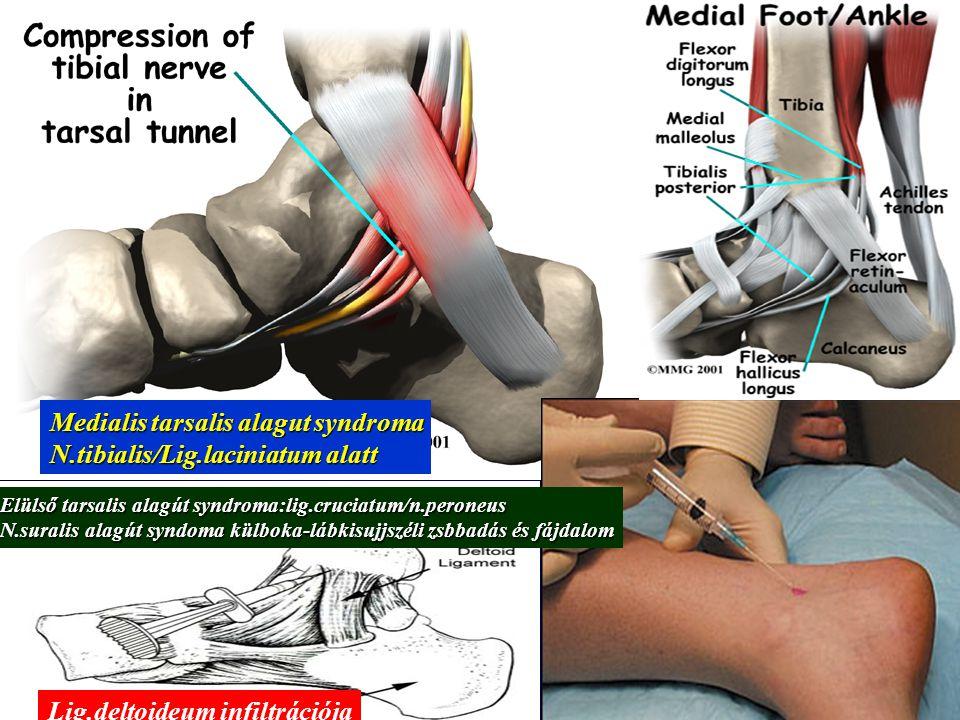 Medialis tarsalis alagut syndroma N.tibialis/Lig.laciniatum alatt Lig.deltoideum infiltrációja Elülső tarsalis alagút syndroma:lig.cruciatum/n.peroneu