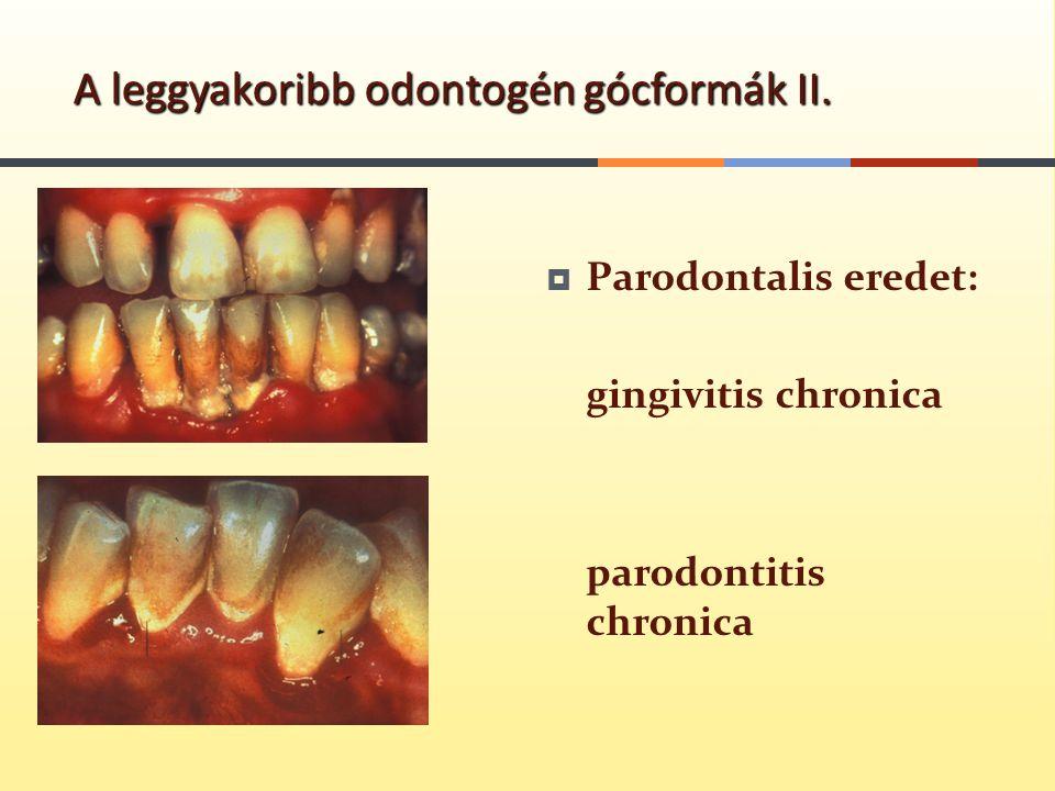  Parodontalis eredet: gingivitis chronica parodontitis chronica A leggyakoribb odontogén gócformák II.