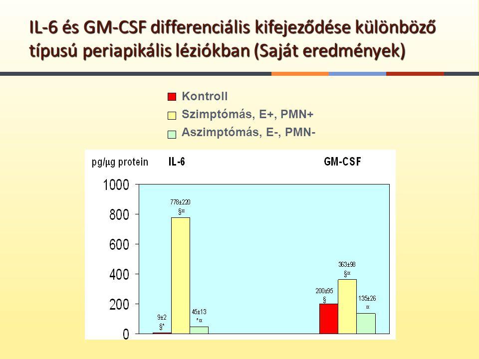 IL-6 és GM-CSF differenciális kifejeződése különböző típusú periapikális léziókban (Saját eredmények) Kontroll Szimptómás, E+, PMN+ Aszimptómás, E-, P