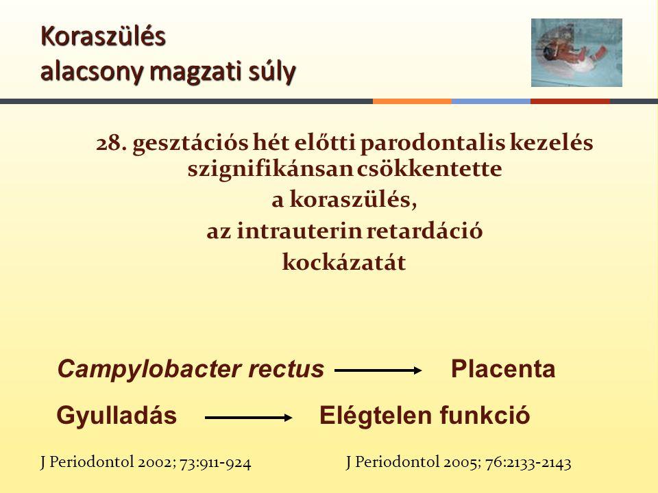 28. gesztációs hét előtti parodontalis kezelés szignifikánsan csökkentette a koraszülés, az intrauterin retardáció kockázatát J Periodontol 2002; 73:9