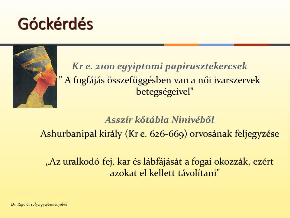 Hippocrates ( Kr.e 400 ) Beszámolt egy betegről, akinek ízületi gyulladása meggyógyult egy gyulladt fog eltávolítását követően Góckérdés Galenus ( Kr e.