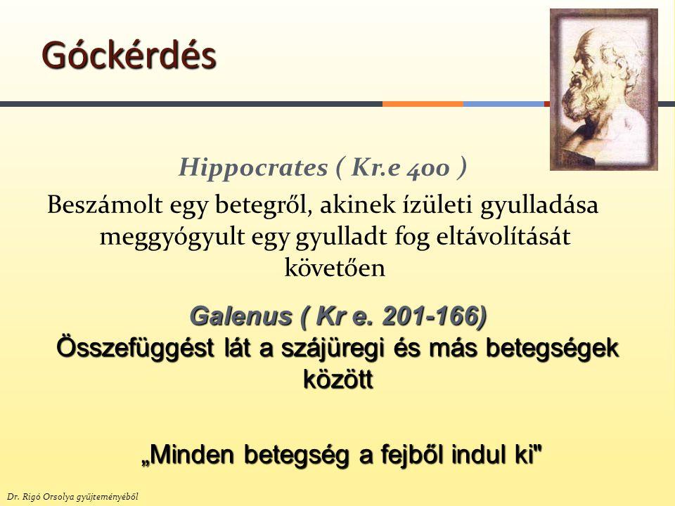 Hippocrates ( Kr.e 400 ) Beszámolt egy betegről, akinek ízületi gyulladása meggyógyult egy gyulladt fog eltávolítását követően Góckérdés Galenus ( Kr