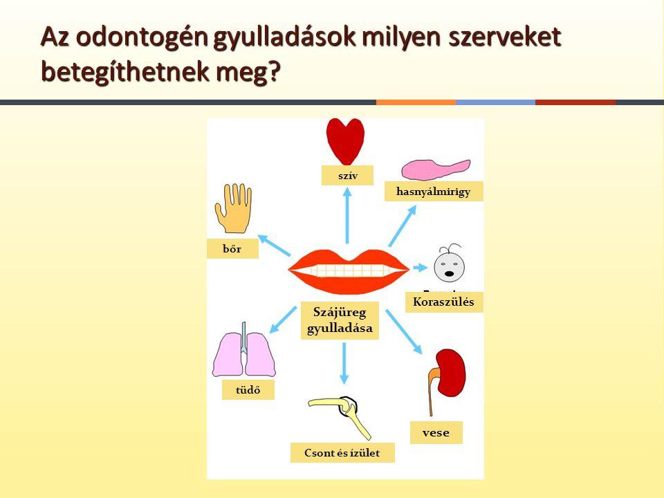 Az odontogén gyulladások milyen szerveket betegíthetnek meg? szív hasnyálmirigy bőr tüdő Koraszülés Csont és ízület vese Szájüreg gyulladása
