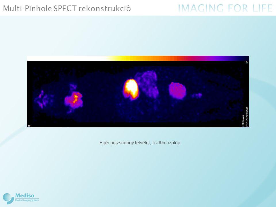 Mediso humán SPECT NanoScan SPECT/CT Párhuzamos kollimátor felépítése
