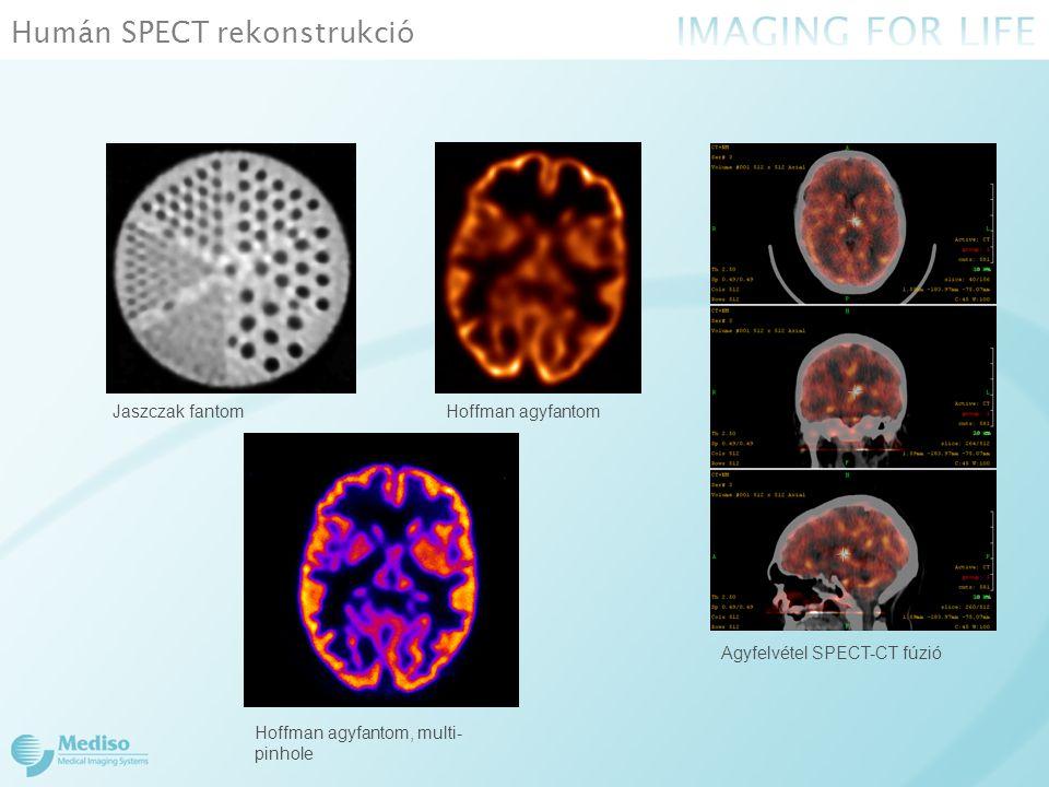 Humán SPECT rekonstrukció Jaszczak fantom Agyfelvétel SPECT-CT fúzió Hoffman agyfantom Hoffman agyfantom, multi- pinhole