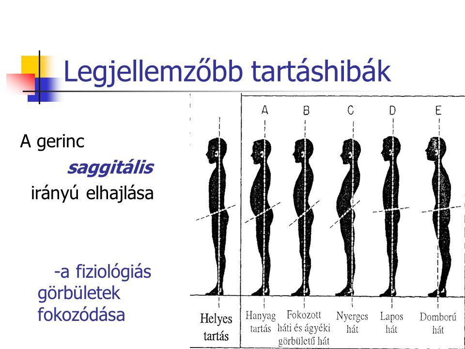 Legjellemzőbb tartáshibák A gerinc saggitális irányú elhajlása -a fiziológiás görbületek fokozódása