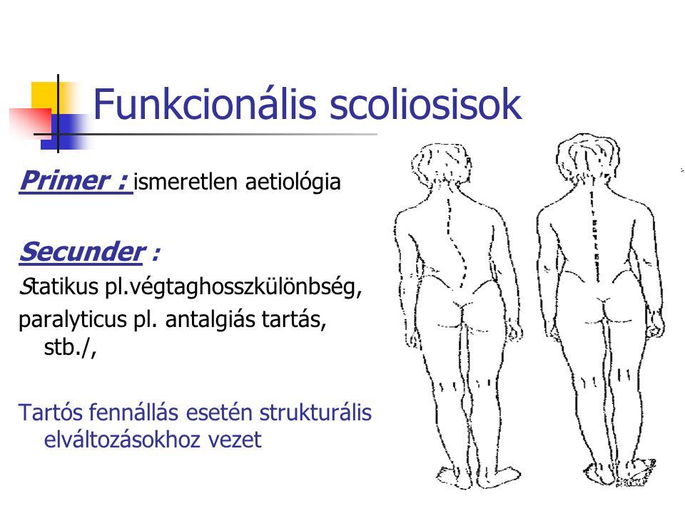Funkcionális scoliosisok Primer : ismeretlen aetiológia Secunder : Statikus pl.végtaghosszkülönbség, paralyticus pl.