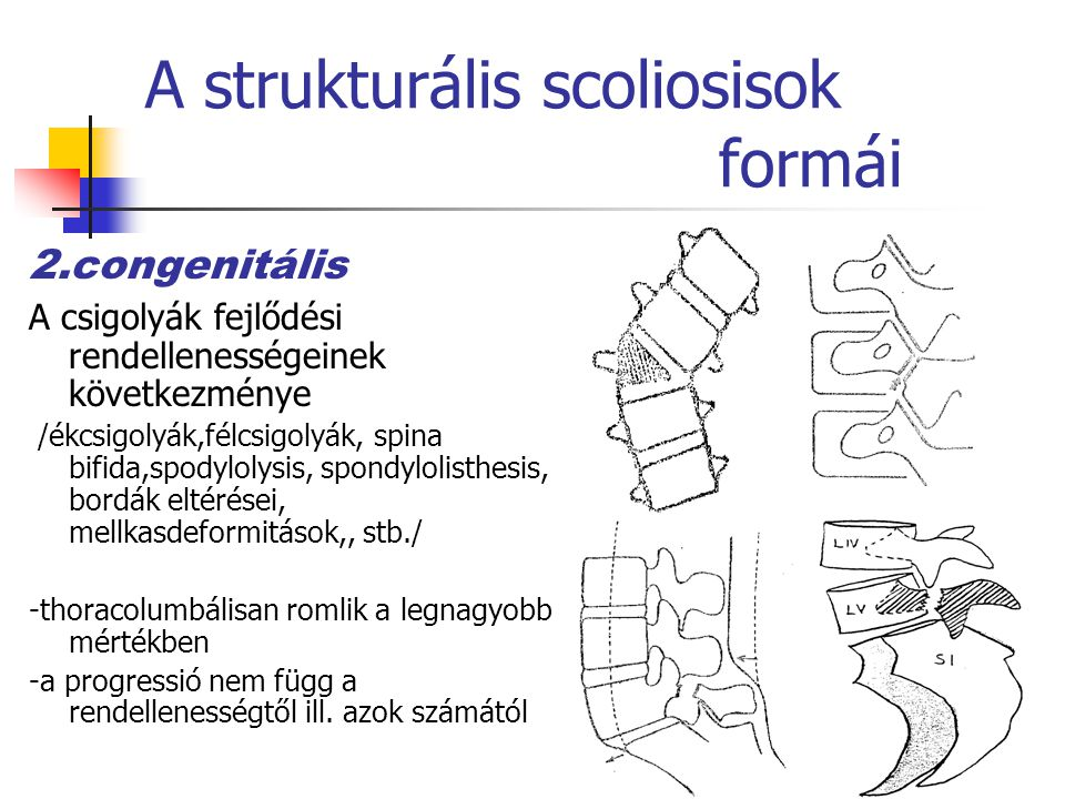 A strukturális scoliosisok formái 2.congenitális A csigolyák fejlődési rendellenességeinek következménye /ékcsigolyák,félcsigolyák, spina bifida,spodylolysis, spondylolisthesis, bordák eltérései, mellkasdeformitások,, stb./ -thoracolumbálisan romlik a legnagyobb mértékben -a progressió nem függ a rendellenességtől ill.