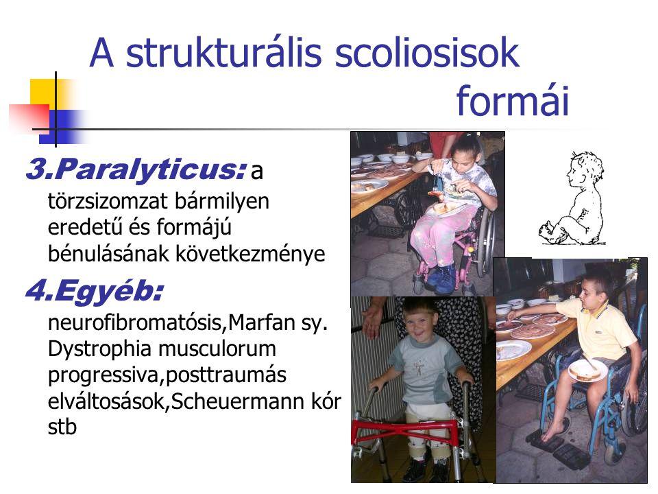 A strukturális scoliosisok formái 3.Paralyticus: a törzsizomzat bármilyen eredetű és formájú bénulásának következménye 4.Egyéb: neurofibromatósis,Marfan sy.