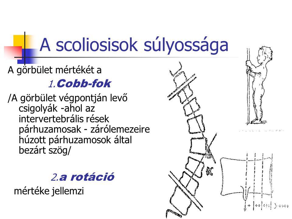 A scoliosisok súlyossága A görbület mértékét a 1.