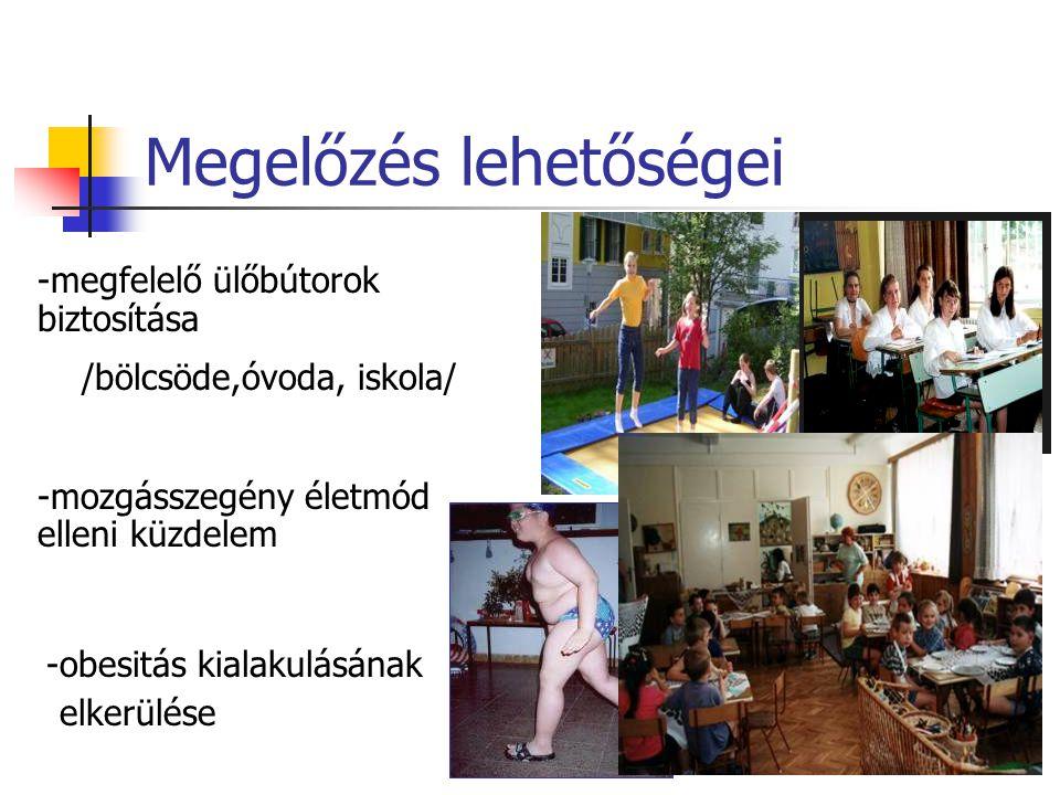 Megelőzés lehetőségei -megfelelő ülőbútorok biztosítása /bölcsöde,óvoda, iskola/ -mozgásszegény életmód elleni küzdelem -obesitás kialakulásának elkerülése