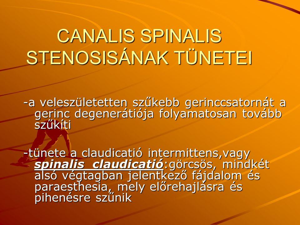 CANALIS SPINALIS STENOSISÁNAK TÜNETEI -a veleszületetten szűkebb gerinccsatornát a gerinc degenerátiója folyamatosan tovább szűkíti -tünete a claudica