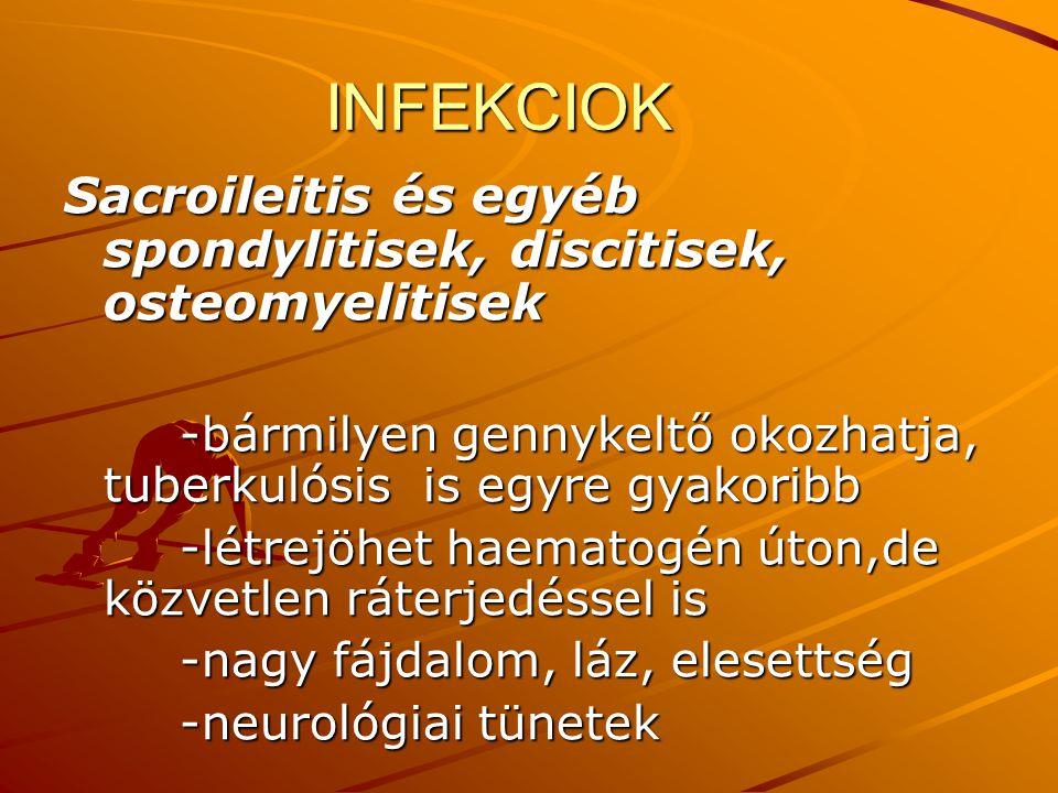 INFEKCIOK INFEKCIOK Sacroileitis és egyéb spondylitisek, discitisek, osteomyelitisek -bármilyen gennykeltő okozhatja, tuberkulósis is egyre gyakoribb