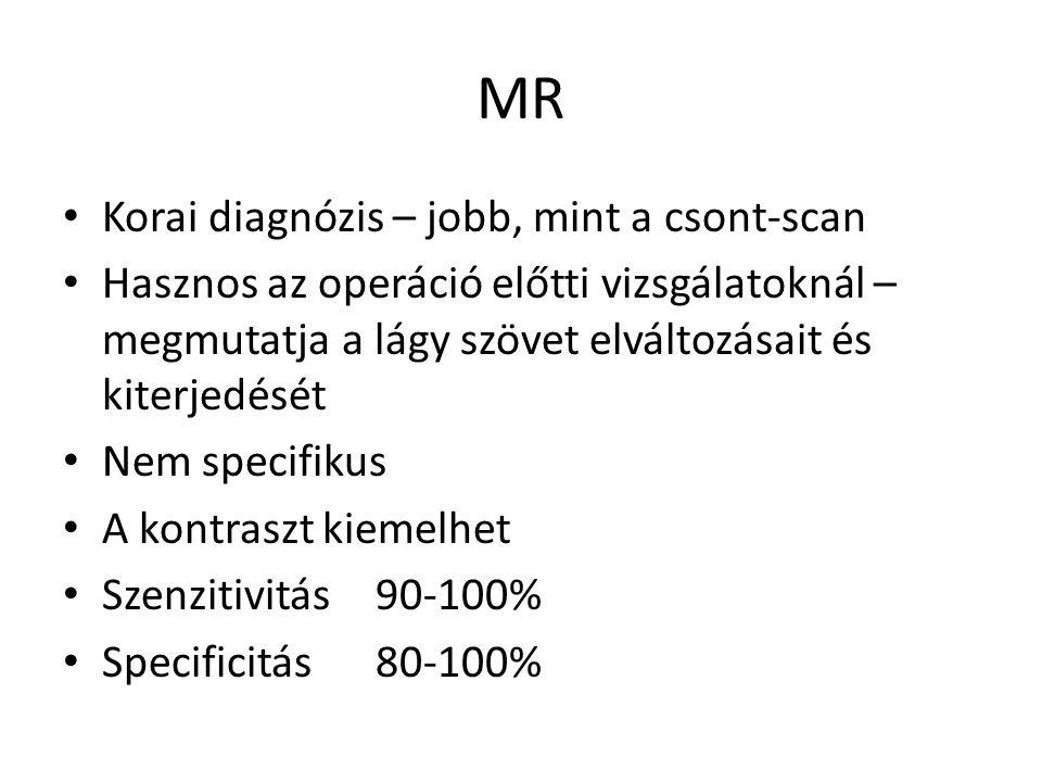 MR Korai diagnózis – jobb, mint a csont-scan Hasznos az operáció előtti vizsgálatoknál – megmutatja a lágy szövet elváltozásait és kiterjedését Nem sp