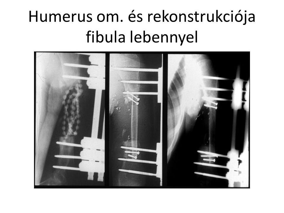 Humerus om. és rekonstrukciója fibula lebennyel
